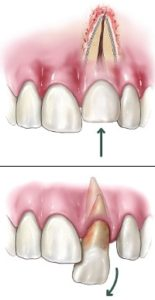 Dislodged Tooth