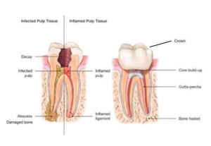 Restoration After Root Canal